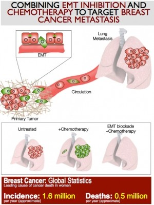 This schematic shows epithelial (red) and mesenchymal (green) cancer cells in primary breast tumors. These tumors metastasize to the lungs to form red nodules, indicating EMT does not generate metastasis (left), but following chemotherapy treatment, green EMT nodules appear (middle), which are chemoresistant (right). Combination treatment with EMT blocker and chemotherapy impairs all metastatic nodules, thereby providing a novel therapeutic approach. Image credit: Mittal lab