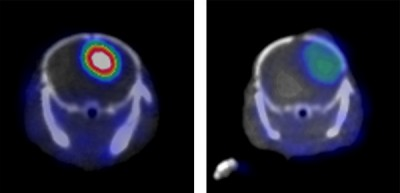 Researchers guided by Weibo Cai have identified a molecular marker on aggressive forms of the brain cancer glioblastoma multiforme and created an antibody that latches onto it. When the antibody is linked to a label that shows up in a PET scanner, an aggressive cancer in a mouse model shines brightly (left). A similar cancer without the molecular marker (right) is much less obvious in the PET scan. Image credit: Weibo Cai