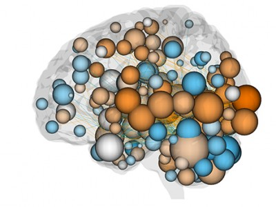 Colored balls represent connections in neural networks involved in attention. Orange balls represent high number of connections in high attention networks, blue have more connections in low attention networks. Gray have roughly the same connections in both networks. Image credit: Chun Laboratory / Yale University