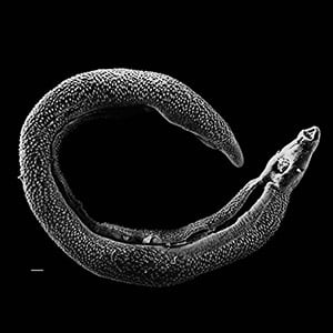 Scientists at Washington University School of Medicine in St. Louis have shown how a parasitic worm infection common in the developing world increases susceptibility to tuberculosis. Pictured is an electron micrograph of a Schistosoma parasite worm. Image credit: Wikimedia Commons