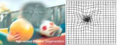 The photo on the left shows a scene as viewed by a person with the form of age-related macular degeneration known as dry AMD. To someone with wet AMD, straight lines appear wavy, as shown by the Amsler grid on the right. Image credit: National Eye Institute, National Institutes of Health