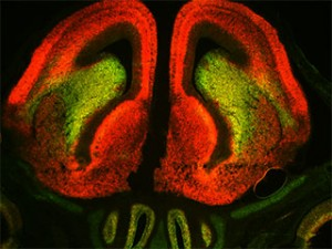 An unexpected finding: When 3' UTR sequences of Sox 11 mRNA in embryonic mouse brain (above) were marked in red and coding sequences in green, common thinking suggested all Sox11-expressing cells would appear yellow, indicating both components were present in even ratios. Surprisingly, some cells were clearly red and others green, suggesting disparities between the two.