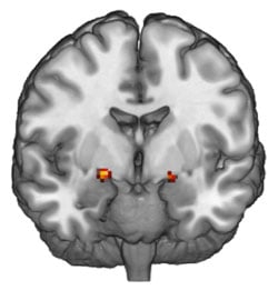 As shown in this functional MRI image, the amygdala, a part of the brain involved in processing emotions, is more active in people who are blaming others for their negative actions. Photo credit: Lawrence Ngo