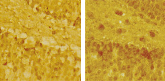 Routine versus disruptive: A familiar stressor (left) did not increase NMDA receptors (dark spots), a booster of potentially harmful glutamate signaling, in the brains of mice. However, when subjected to an unfamiliar stress (right), mice expressed more NMDA receptors.