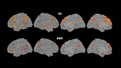 Children with ASD showed significantly reduced brain activation, compared to typical participants (TD), in regions considered part of the ToM network. Credit: Carnegie Mellon University