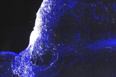 Damaged optic nerve fibers, or axons (white), in a mouse show extensive regeneration after gene therapy. Scar tissue is shown in blue. By adding a potassium channel-blocking drug to the gene therapy, researchers were able to boost conduction in the regenerated nerves and restore vision. Image credit: Fengfeng Bei