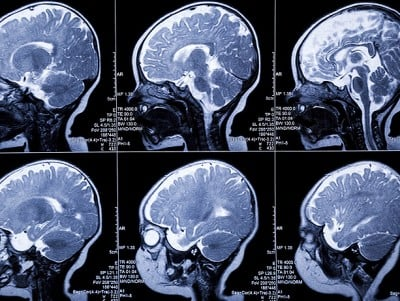 MRI brain scans indicate leukodystrophy and developmental anomaly.