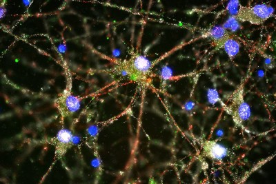 Imaging studies showed C4 (in green) located at the synapses of primary human neurons. Image credit: Heather de Rivera, McCarroll lab