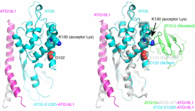 "A tiny change in the ATG5 molecule that's a key part of the brain's ""garbage disposal"" mechanism is enough to cause major effects. The change involves just one amino acid."
