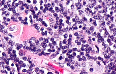 Micrograph showing follicular lymphoma. Image credit: QMUL
