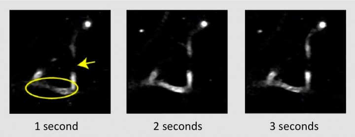 """Fluorescently labeled blood plasma appears white in the images with """"shadows"""" of unlabeled red blood cells moving over time (oval). Darker areas that don't change through time can be identified as stalled vessels (arrow). Credit: WeCureAlz."""