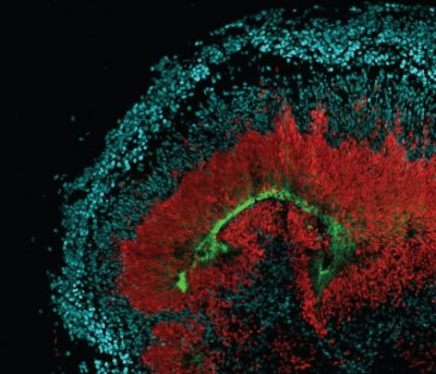 An image of tissue that's grown in a dish shows radial glia stem cells that are red, neurons in blue and the AXL receptor in green. Image credit: Elizabeth DiLullo