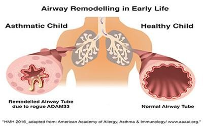 Airway remodelling in early life. Image credit: University of Southampton