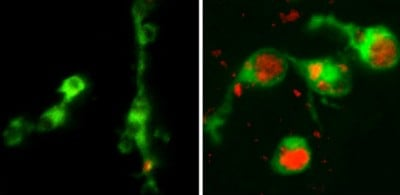 Left - normal macrophages (green); Right - dysfunctional macrophages whose lysosomes (red) are clogged with cell debris. Credit: Steven Levitte