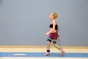 Walk-DMC is a new, quantifiable measure of motor control in children with cerebral palsy. It relies on data from electromyography (EMG) shown in this demonstration, which uses electrodes to monitor muscle activity. Image credit: Michael Schwartz/Center for Gait and Motion Analysis, Gillette Children's Specialty HealthCare