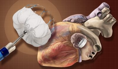 The Watchman device prevents blood clots from forming in the left atrial appendage — tissue that projects off one of the upper chambers of the heart. Illustration by Patrick Lynch / Yale University