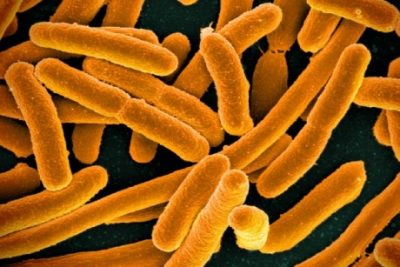 Colorized scanning electron micrograph of E. coli; some strains are common, beneficial gut bacteria. Credit: National Institute of Allergy and Infectious Diseases, National Institutes of Health