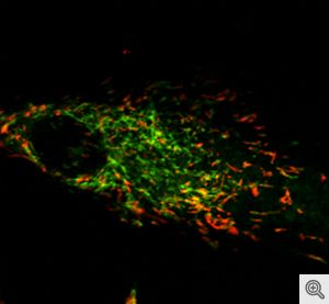 Green dye indicates damaged mitochondria that cannot be removed in due to impaired ROS sensing mechanisms.