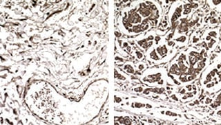 Cancer gone aggressive: In these samples from non-metastatic (left) and metastatic breast cancer (right), cells producing EXOSC2, a metastasis-promoting protein, are stained with a brown dye. The researchers found that EXOSC2 expression is enhanced in metastatic tumors because their cells have increased levels of a tRNA called GluUUC.