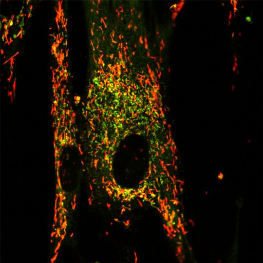 The red dye in the cell show healthy mitochondria in a healthy cell. Images courtesy: Haoxing Xu