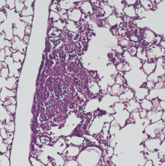 Inflamed area of a lung infected with Pseudomonas combined with 2,3-butanediol. Credit: Worgall Lab