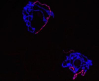 """X chromosomes are easy to spot in these bundles of DNA because the reddish """"male-specific lethal"""" protein has been made to fluoresce along their length. Credit: Leila Rieder"""