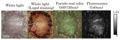 Fluorescence images after spraying with probe The tumor lesion was difficult to detect by white light imaging (left). Just 10 min after spraying probe, the tumor lesion was clearly and specifically visualized and fluorescence-positive site matched well with the lugol voiding lesions (right). Lugol staining is useful for identifying ESCCs, because tumor lesion was unstained. However, discomfort has frequently been reported after lugol staining. On the other hand, probe is low stimulation and patients could receive painless examination. Image credit: Haruna Onoyama.