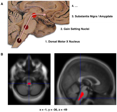 A. Schematic initial progression of Lewy body deposits in the first stages of Parkinson's disease, as proposed by Braak and colleagues B. Localization of the area of significant brain volume reduction in initial PD compared with a group of participants without the disease in a neuroimaging study, which concluded that brain stem damage may be the first identifiable stage of PD neuropathology. Credit: Jubault et al, Wikimedia Commons