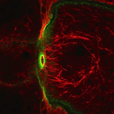 This high magnification view of the filaments (in red) made by the newly discovered atypical tropomyosin shows that they do not overlap with actin filaments (in green).