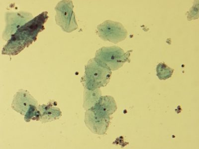 Microscopic picture of vaginal epithelial clue cells coated with Gardnerella vaginalis, magnified 400 times. Image credit: Wikimedia Commons, Dr. F.C. Turner