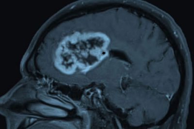 Glioblastoma, shown above, is the most common and deadly form of brain cancer in adults. New research at Washington University School of Medicine in St. Louis shows that glioblastoma patients with a protein called oncostatin M receptor on their tumors face a particularly poor prognosis, suggesting that treatments that target the protein could improve survival. Image credit: Albert Kim