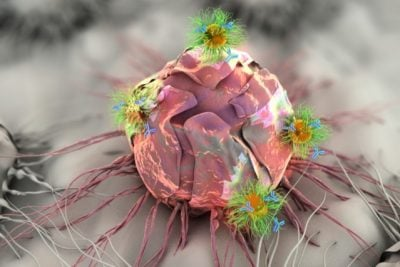 Researchers at MIT are developing an adhesive patch that can stick to a tumor site, either before or after surgery. The patch delivers a triple-combination of drug, gene, and photo (light-based) therapy via specially designed nanospheres and nanorods, shown here attacking a tumor cell. Image credit: Ella Maru