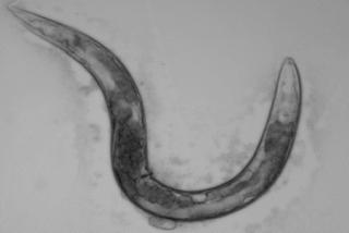 A study involving C. elegans worms (pictured) and human cells suggests that a deficiency of SMN protein leads to SMA by disrupting the important process of endocytosis.Image courtesy of Anne Hart