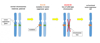 Loss of a tumor suppressor gene locus according to the two-hit model: In the first hit, the tumor suppressor gene on one of the two chromosomes is affected by a mutation that makes the gene product non-functional. This mutation may arise spontaneously as a DNA replication error or may be induced by a DNA damaging agent. The second hit removes the remaining wild-type chromosome, for example through a mitotic nondisjunction event. There are several other potential mechanisms for each of the two steps, for example an additional mutation, an unbalanced translocation, or a gene deletion by recombination. As a result of the double lesion, the cell may become malignant because it is no longer able to express the tumor suppressor protein. Credit: Wpeissner, Wikimedia Commons