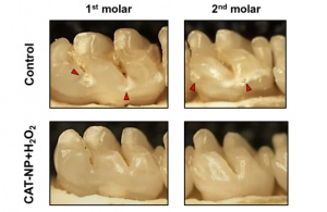 Treatment with the nanoparticle-hydrogen peroxide treatment delayed the onset and severity of tooth decay.