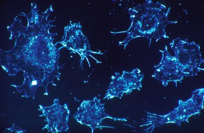 Cancer cells in culture from human connective tissue, illuminated by darkfield amplified contrast, at a magnification of 500x. Credit: National Cancer Institute, Wikimedia Commons