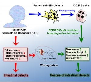 A link between telomeres and the Wnt pathway may point to a treatment option for dyskeratosis congenita.