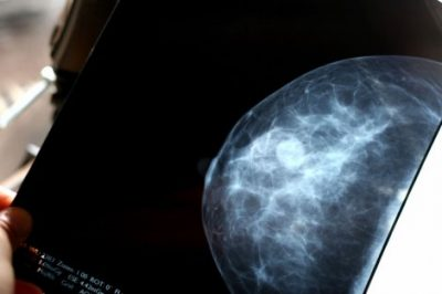breast-scan