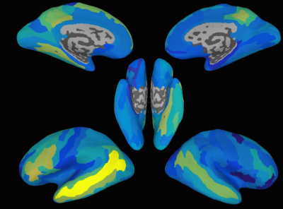 These brain maps show how accurately it was possible to predict neural activation patterns for new, previously unseen sentences, in different regions of the brain. The brighter the area, the higher the accuracy. The most accurate area, which can be seen as the bright yellow strip, is a region in the left side of the brain known as the Superior Temporal Sulcus. This region achieved statistically significant sentence predictions in 11 out of the 14 people whose brains were scanned. Although that was the most accurate region, several other regions, broadly distributed across the brain, also produced significantly accurate sentence predictions. Image credit: University of Rochester graphic / Andrew Anderson