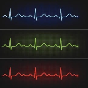 Certain calcium channel blockers, like verapamil, correct irregular heart beats and restore a normal rhythm