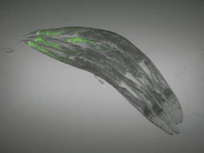 The guts of C. elegans worms are highlighted by a green fluorescent protein that is produced when the nervous system is targeted by genetic modifications or by drugs used in humans. Photo by Alejandro Aballay.