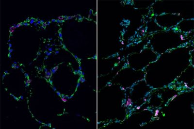 3-D bioengineered lung-like tissue (left) resembles adult human lung (right). Credit: UCLA Broad Stem Cell Research Center