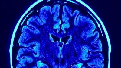 Investigators found gray matter reductions had different patterns in females and males.