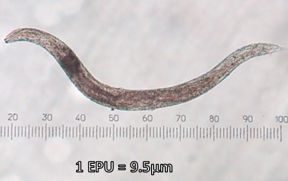 Worms experience rigor mortis while they are still alive