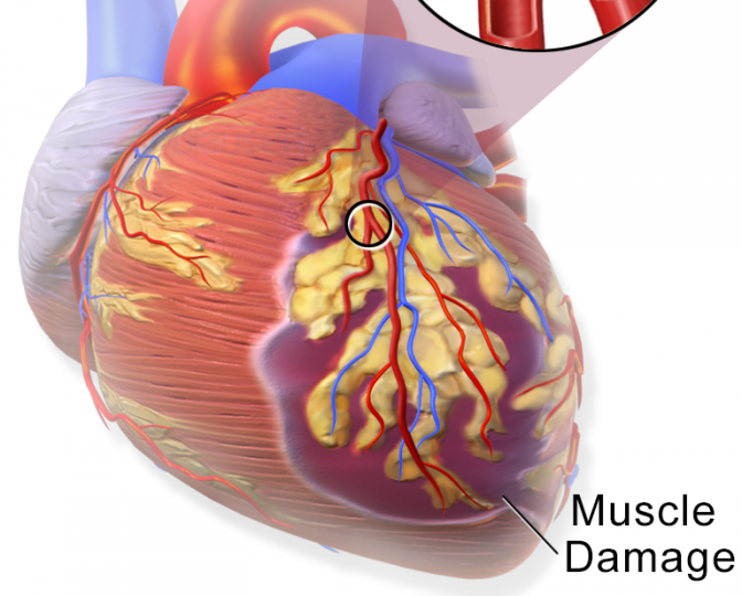Heart attack process. Image credit: Blausen Medical Communications, Inc.