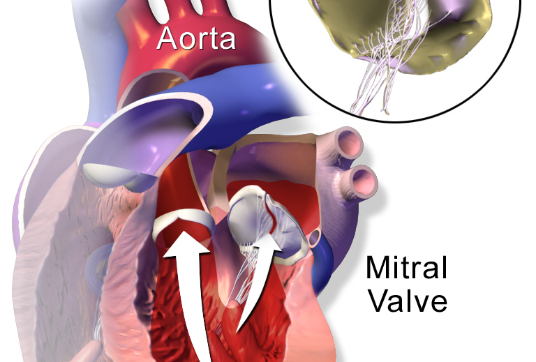 Mitral valve prolapse is a very common condition, affecting 12 out of a 1000 people. Image credit: BruceBlaus via Wikimedia (CC BY-SA 4.0)