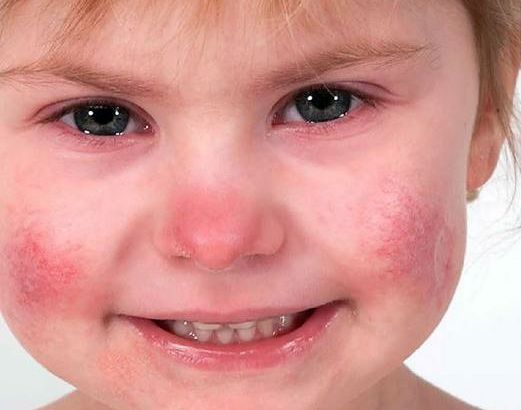 The girl suffers from the disorder SAVI, whereby the cells in her body constantly release molecules that cause inflammation. This results in severe skin eczema, problems with lung function and impaired growth. Image credit: National Institutes of Health.