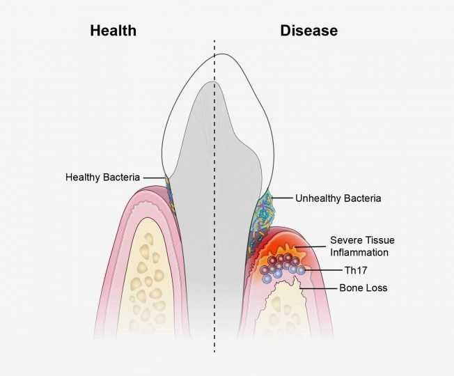 A new study suggests that periodontal disease is driven by Th17 immune cells, which are triggered by an unhealthy bacterial community. Image credit: NIDCR