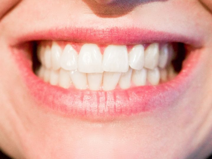 Healthy smile. Image credit: Kjrestin_Michaela via Pixabay, CC0 Public Domain