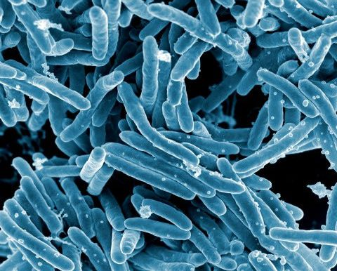 Scanning electron micrograph of Mycobacterium tuberculosis bacteria, which cause tuberculosis. Image credit NIAID via Flickr, CC BY 2.0